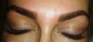 implant-sprancene-dr-felix